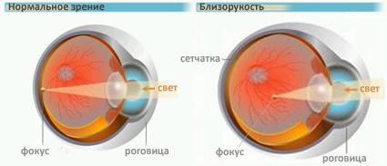 Жданов восстановление зрения комплекс упражнений при близорукости