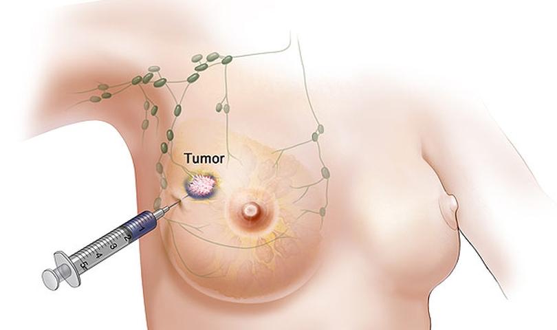 seks-posle-mastektomii