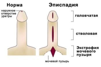 Necə evdə penis baş artırmaq