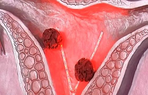 Заболевание эндометриоз матки лечение